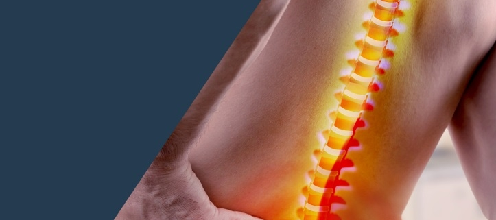 prevencion dolor espalda